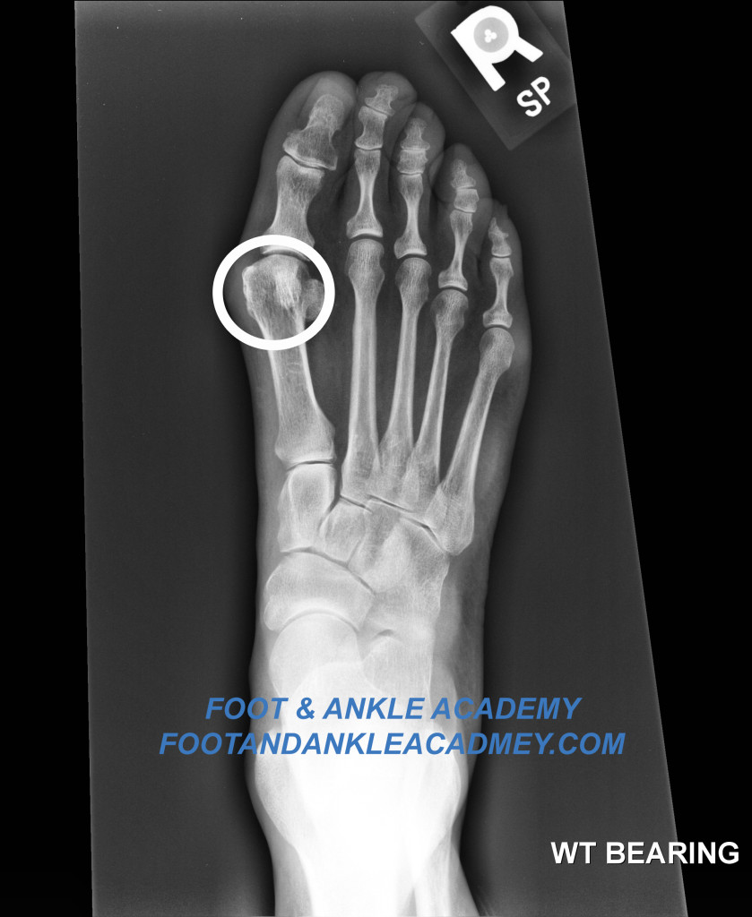 Bunion picture - foot and ankle academy